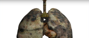 How to Detox Smoker's Lungs: Methods You Have Not Thought Of
